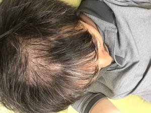 ハーグ治療により、薄毛を治療しました。